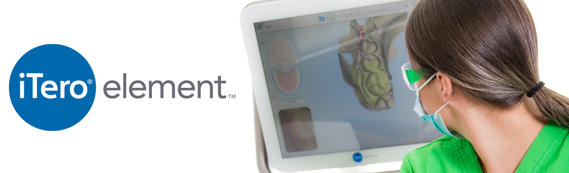 itero-digital-scanner-invisalign-coral-springs-fl