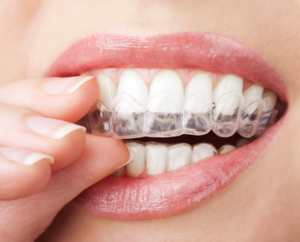 A close up of a. woman nsertng an Invisalign braces aligner n Coral Springs FL