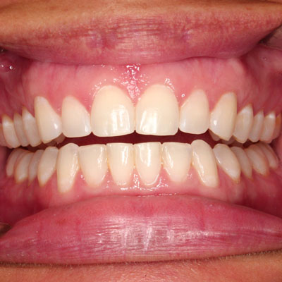 best invisalign coral springs